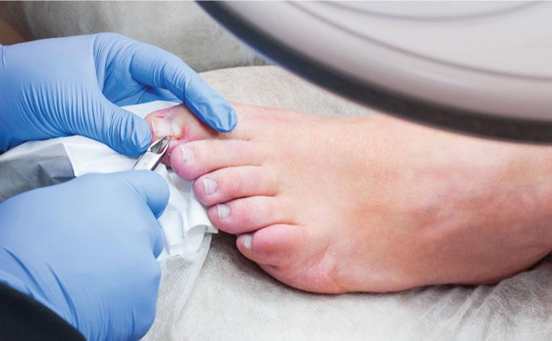 ingrown-toenail-treatment-banner